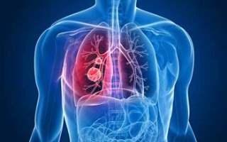 Akciğerinizi 3 Günde Temizleyin!..