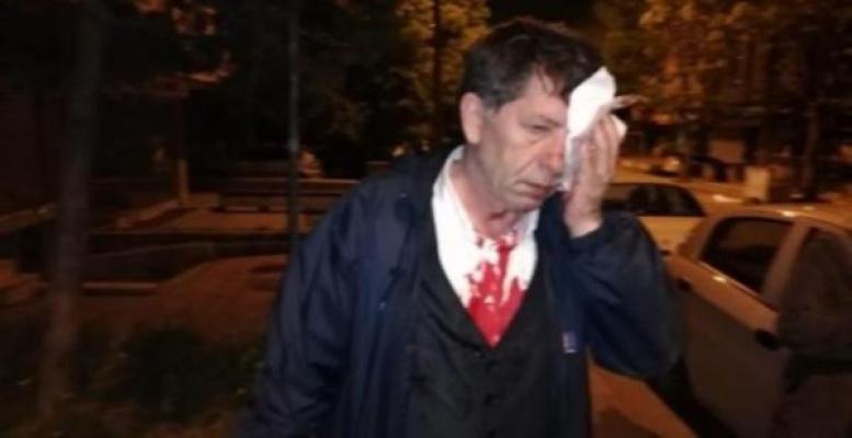 Gazeteci Demirağa Saldırı!..