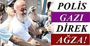 POLİS GAZI BU KEZ AĞIZA!
